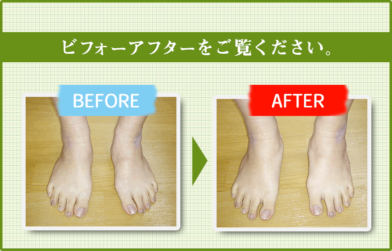 外反母趾の改善
